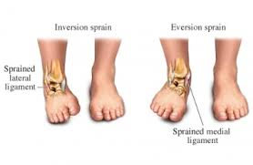 Collateral Ligaments Ankle Ankle Sprain Physiopedia