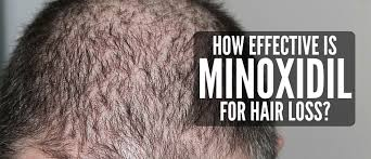 new hair growth discoveries how effective is minoxidil for hair loss top hair loss treatments