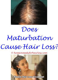 what causes hair loss in women over 50 best 25 pcos hair loss ideas on pinterest treatment of pcos