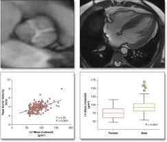 myocardial fibrosis and cardiac decompensation in aortic stenosis