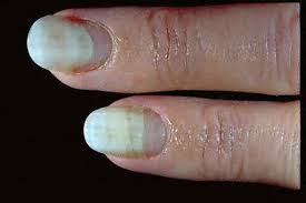 onycholysis nail problem nail fungus nail deformity