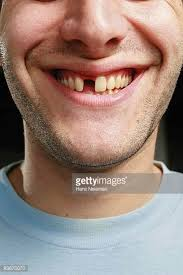 Missing Teeth Meme - men with missing teeth stock photos and pictures getty images