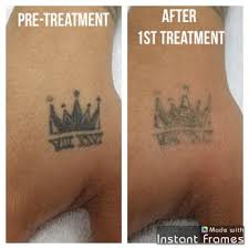 reset tattoo removal 99 photos u0026 57 reviews tattoo removal