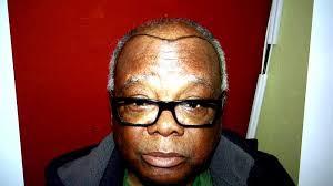 hairline restoration for black men balding black man