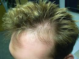 Women Hair Loss Treatment The Hair Centre Hair Loss Photos Treated