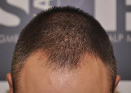 pics of scalp micropigmentation on people with long hair scalp micropigmentation and long hair his hair clinic