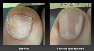 fungal nails onychomycosis foot u0026 ankle doctors inc