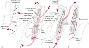 Tendon Synovial Sheath Hand And Wrist Injuries Musculoskeletal Key