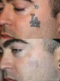 laser tattoo removal salt lake city cosmetic surgery