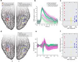 electrical stimulation of the left and right human fusiform gyrus