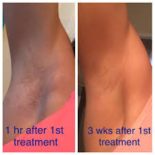 brazilian laser hair removal pictures my experience thus far with laser hair removal mama laughlin