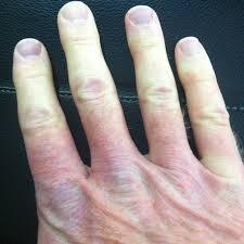 raynaud syndrome wikipedia