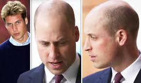 germany hair cuts prince william new hair in pictures bald duke sports new hair cut
