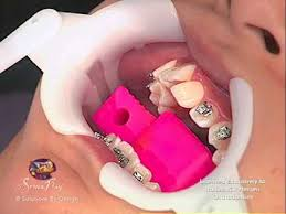 getting started with braces