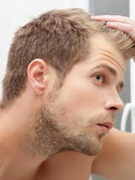 thining hair in men front does rogaine regrow hair front regrow hair