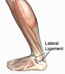 High Ankle Sprain Anatomy Sprained Ankle Rolled Ankle Ankle Sprain Physioadvisor