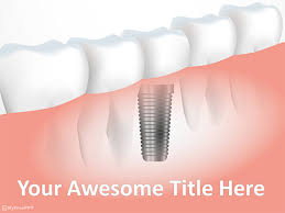 dental templates for powerpoint free download free tooth implant powerpoint template download free powerpoint ppt