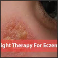 light therapy for eczema ultraviolet light therapy for eczema eczema free forever 180317