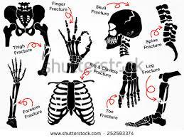 Skeletal Picture Of Foot Leg Bone Stock Images Royalty Free Images U0026 Vectors Shutterstock
