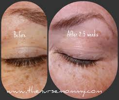 top notch material win envy derm eye lash growth serum to get