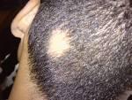 <b>Alopecia areata</b>.