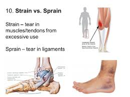 Ankle Anatomy Ligaments Muscular System Ppt Video Online Download