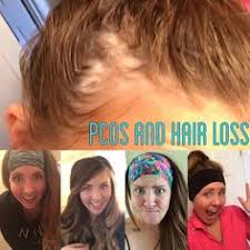 headbands for hair thinning pcos hair loss and amazing headbands living with my pcos