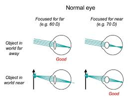 Blind Spot In Eyes Perception Lecture Notes The Eye