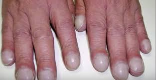 brittle nails may be a sign of health problems tiphero