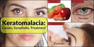 Vitamin A Deficiency Causes Night Blindness Keratomalacia Treatment Causes Symptoms