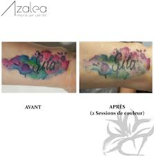 tech results azalea laser clinic u2013 montreal laser tattoo removal