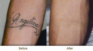 intense pulsed light tattoo removal tattoo removal enhance studio medi spa ltd vernon bc spa skin