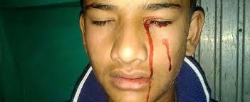imágenes religiosas que lloran sangre médicos desconcertados con un joven con estigmas llora sangre