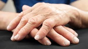 prevention of deformed fingers continental hospitals