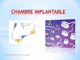 rincage pulsé chambre implantable rincage pulsé chambre implantable 100 images cathéter à