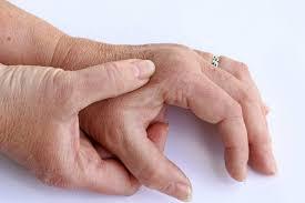 schmerzen in der handfläche fingerschmerzen schmerzen in den fingern ursachen und wirksame