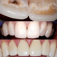 upper 10 porcelain veneers lower 5 unit zirconia bridge laser