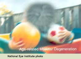 age related macular degeneration amd visionaware