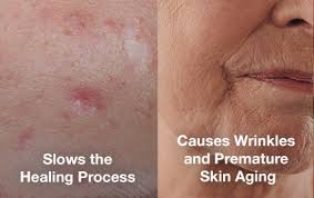 What Causes Blind Pimples In Adults Does Smoking Cigarettes Cause Acne Acne Org
