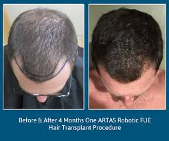 hair transplant month by month pictures artas fue hair transplant 4 month follow up we grow hair indy