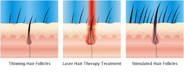 low level light therapy hair maintain current hair stop hair loss from continuing maintaining