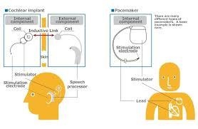 keys to visual prostheses about the technology nidek co ltd