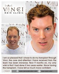 how to manage a ver low hairline best 25 hairline transplant ideas on pinterest jaw reduction