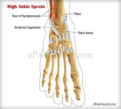 Anterior Tibiofibular Ligament Injury What Is High Ankle Sprain Or Syndesmotic Ankle Sprain Treatment