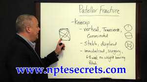 national physical therapy examination patellar fracture youtube
