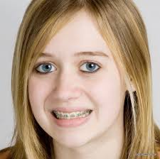 hair colors for women over 60 gray blue 60 photos of teenagers with braces oral answers
