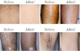intense pulsed light tattoo removal intense pulsed light hair removal tattoo removal equipment