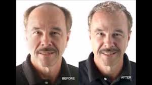 can hair loss be caused by thyroid problems hair will grow back
