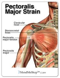 Shoulder Pain In Bench Press Aidmyrotatorcuff Com Pectoralis Major Tendon And Muscle Rupture
