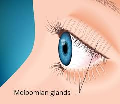 Diseases Of The Eye That Cause Blindness What You Should Know About Meibomian Gland Dysfunction Mgd